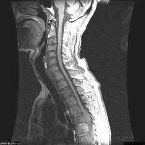 MRI of lower human spine (image used with permission, J.P. Hornak, The Basics of MRI)