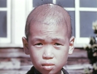 Still image from 1945 Atomic Bomb Casualty Commission film, of a boy exposed to radiation in Nagasaki.